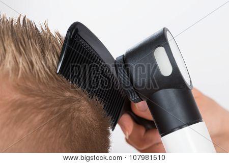 Doctor Examining Patient's Hair Through Dermatoscope