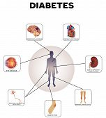 Diabetes complications detailed info graphic on a white background poster