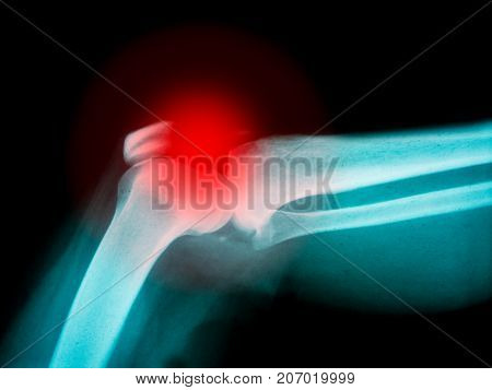 X-ray of human arm showing broken bone with red highlight
