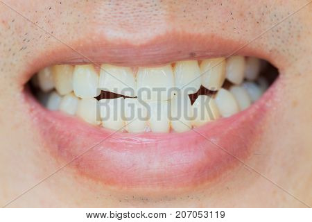 Teeth Injuries or Teeth Breaking in Male. Trauma and Nerve Damage of injured tooth Permanent Teeth Injury