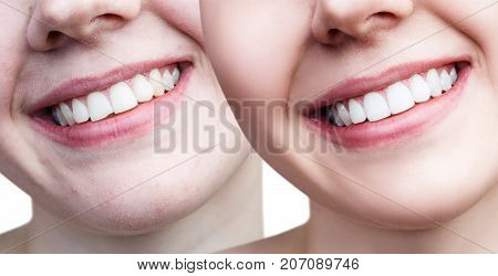 Teeth of young woman before and after whitening and correction over white background.