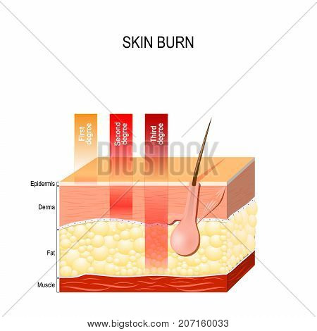 skin burn. Layers of the skin. First second and third degree skin burns