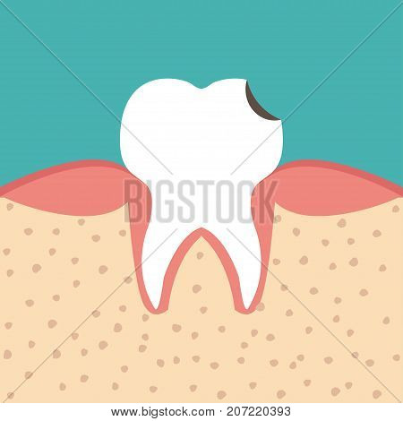 Sectional view tooth decay. Human with caries. Dental health problem - vector