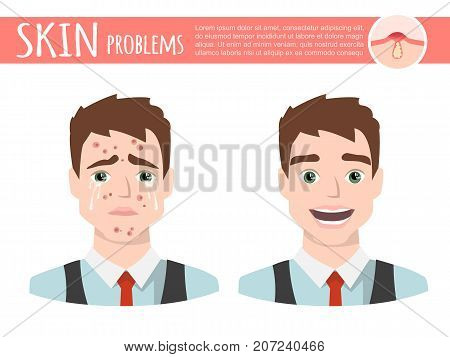 cartoon man with acne before and after
