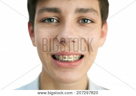 Teen smiling and showing braces on upper and lower teeth. Isolated. Focus on braces