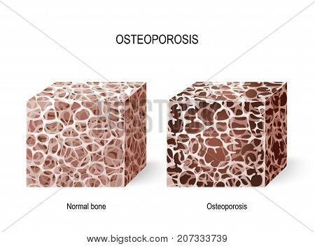 Bone Images, Illustrations & Vectors (Free) - Bigstock