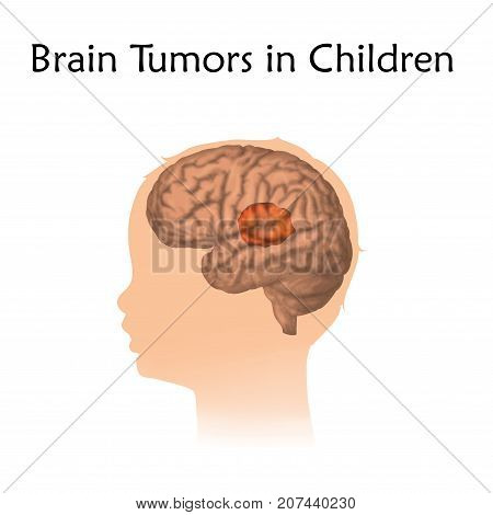 Brain tumors, cancer in infants, childhood. Vector medical illustration. Kid, baby, childhood. White background, silhouette of child head, anatomy image.