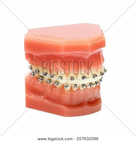 Denture with braces isolated on white background