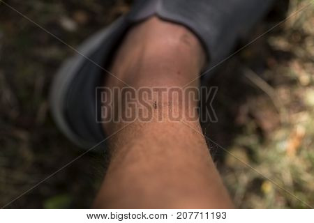 A mosquito on a leg getting the blood