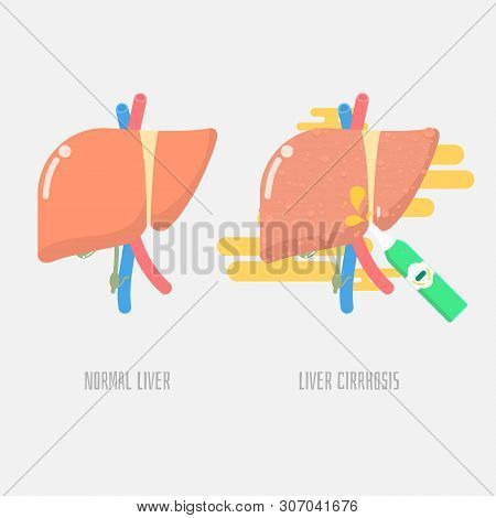 Liver Cirrhosis With Drinking Alcohol, Health Care Concept, Vector Illustration Cartoon Flat Design