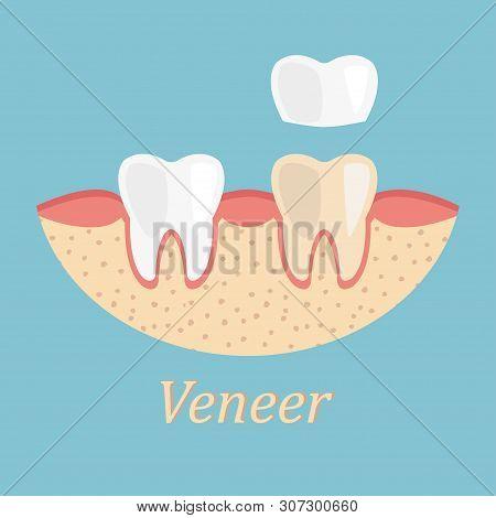 Teeth Procedure Of Veneer Restoration. Process Stomatology Prosthesis