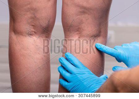 Surgeon Examining Patient's Leg
