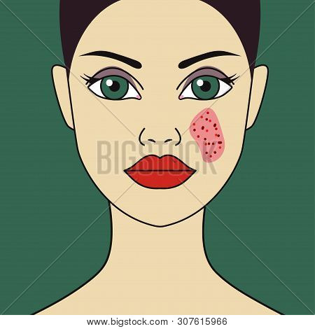 Woman With Eczema On Face, Red Spot On Girls Face, Skin Disease. Vector Illustration