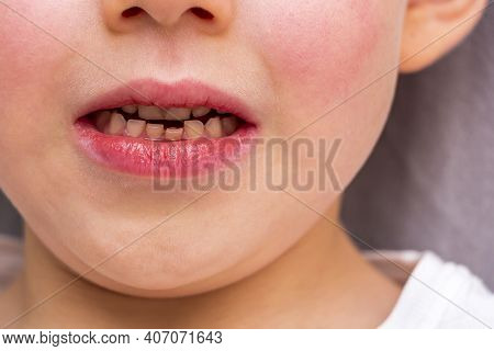 Child Loose Tooth. Little Boy 6 Years Old Loose Baby Tooth Incisor. Kids Dental Medicine And Oral Hy