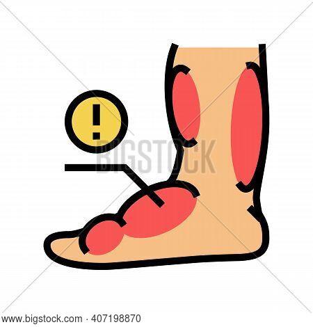 Leg Edema Critical Leg Health Problem Color Icon Vector. Leg Edema Critical Leg Health Problem Sign.