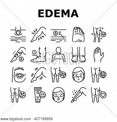 Edema Disease Symptom Collection Icons Set Vector. Venous And Fatty, Lymphatic And Hypoproteinemic,