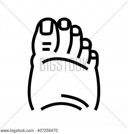 Fatty Foot Edema Line Icon Vector. Fatty Foot Edema Sign. Isolated Contour Symbol Black Illustration
