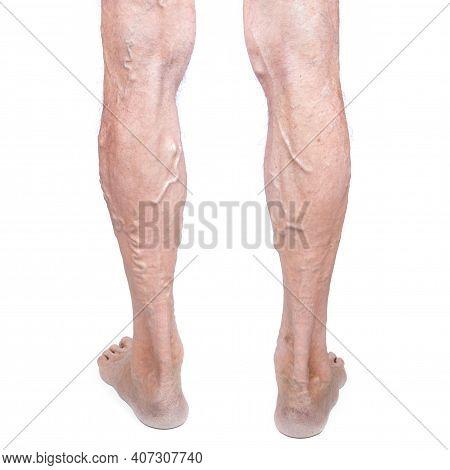 Elderly Man Leg With Varicose Veins Isolated On White Background. Varicosity Spider Veins. Medicine