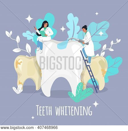 Tiny Female Doctor Dentist Whitening Big Tooth, Flat Vector Illustration. Teeth Whitening Procedure.