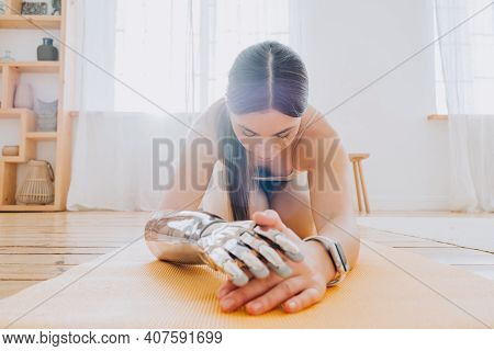 A Beautiful Young Woman With A Bionic Prosthetic Arm And A Modern Fitness Watch Does Yoga At Home On