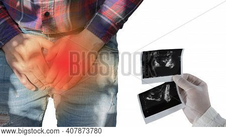 Pain In The Prostate, Disease Of The Prostate Gland, A Man Squeezes The Urogenital Canal With His Ha