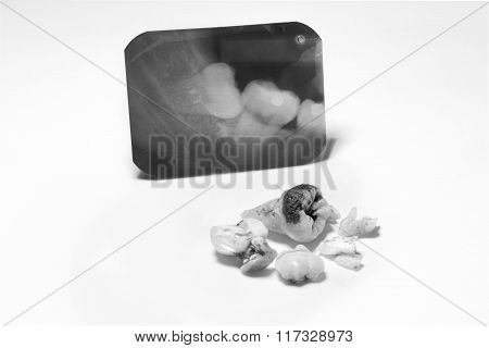 Film X-Ray scan for impacted tooth and tooth removal ; black & white tone
