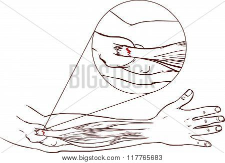 Tennis Elbow - Tear In The Common Extensor Tendon Of The Arm (black And White)
