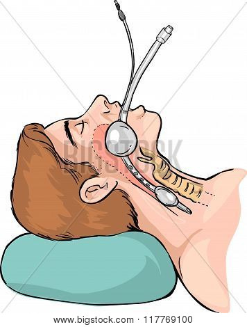 Vector Illustration Of A Technique Of Tubal Intubation