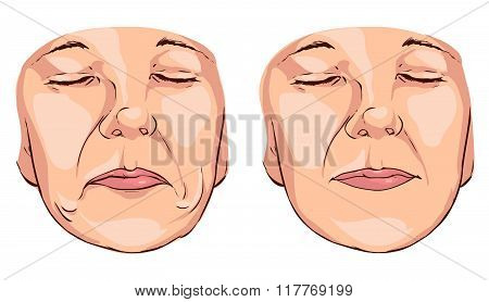 Vector Illustration  Medical Of A Smile Lines