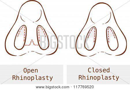 Vector Illustration Of A Anatomy Rhinoplasty Technique