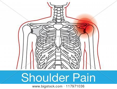 Shoulder pain outline