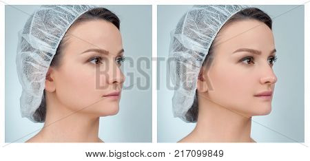 Rhinoplasty. Portrait of female face, before and after plastic surgery of the nose