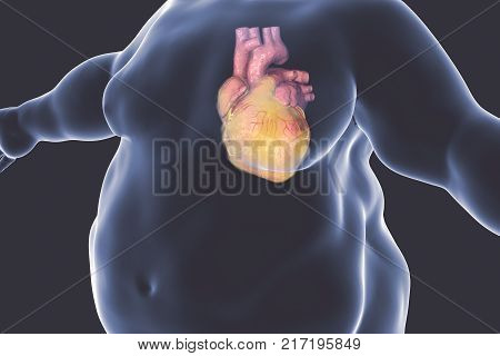 Heart disease in a person with obesity, conceptual image. 3D illustration showing increased weight male with obese heart