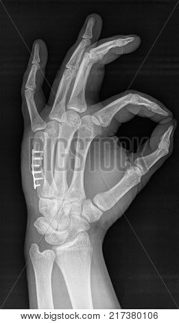 X-ray of human hand. V metacarpal bone implanted surgically after bone fracture.