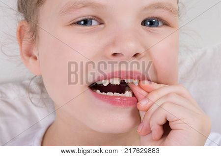 a little girl wobbles a milk tooth with two fingers