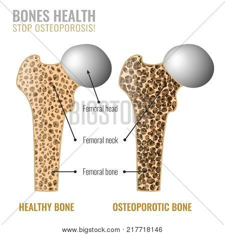 Osteoporosis cross section image. Osteoporosis bone and healthy bone in comparison isolated on a white background. Vector illustration useful for medical, educational or scientific graphic design.