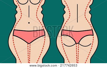 Liposuction of body. Slim hips, thin waist. Weight loss. Plastic surgery beautiful female figure. Vector illustration