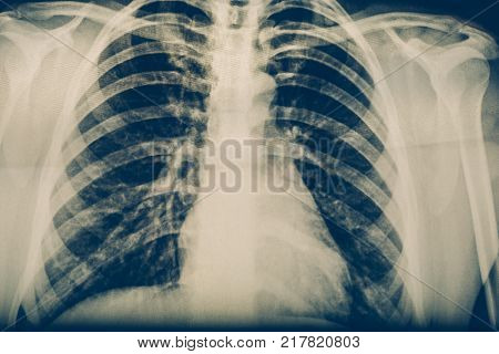 X-ray of a human chest or lungs radiography shot, medical technology and roentgen clinic diagnostic concept, toned