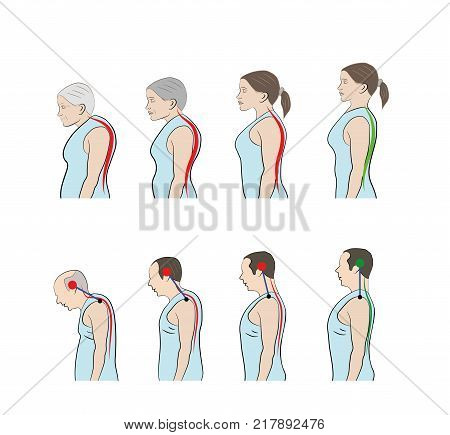 Development of a stooped stance with age, showing increasing curvature of the spine in men and women. vector illustration