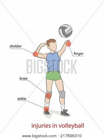 injuries in volleyball. the picture shows the most injured parts of the body when playing volleyball. vector illustration.