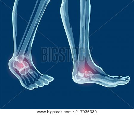 Human leg bones and joints, x-rays. Mecial vector illustration.