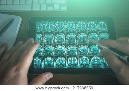 Doctor looking at tablet on his table with MRI brain scan or x-ray, modern medical diagnostic concept, top view