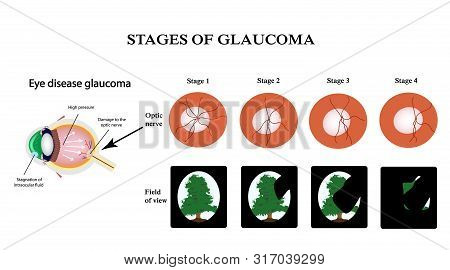 Glaucoma. The Structure Of The Eye. The Field Of Vision In Glaucoma. Atrophy Of The Optic Nerve. Inf