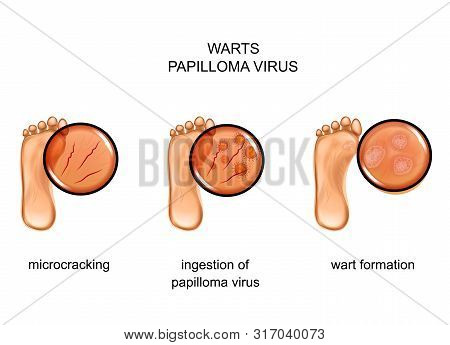 Vector Illustration Of Warts On The Sole