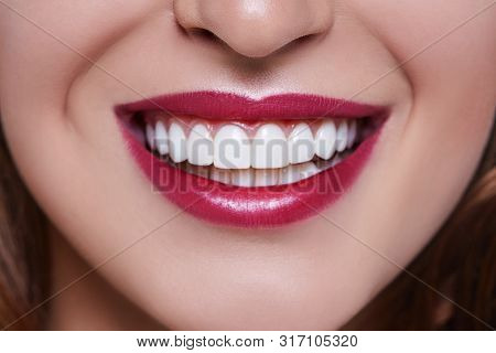 Healthy White Smile Close Up. Beauty Woman With Perfect Smile, Lips And Teeth. Beautiful Model Girl