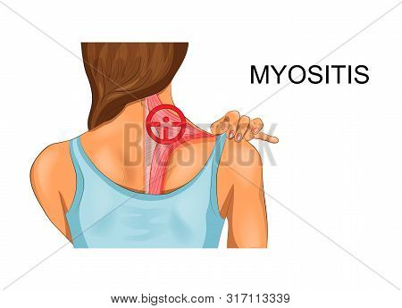 Vector Illustration Of Trapezius Muscle. The Incidence Of Myositis