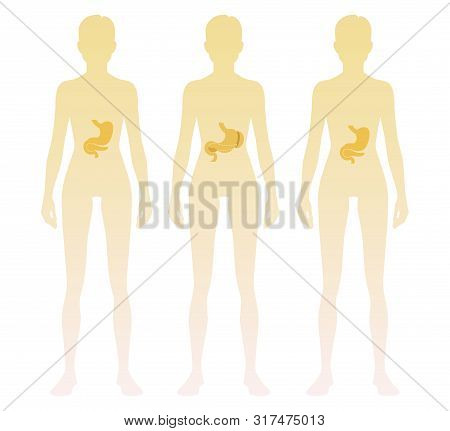 Woman Silhouette With Stomach, Pancreas, Spleen Location On Body. Vector Illustration