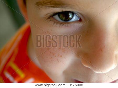 A Freckle Faced Boy