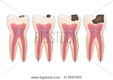 Caries Tooth. Decay Pulpit Dental Problem Procedure Root Vector Tooth Medical Pictures. Dental Medic