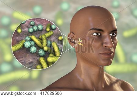 Otitis Media, Inflammatory Disease Of The Middle Ear, 3d Illustration Showing An African Man With Hi